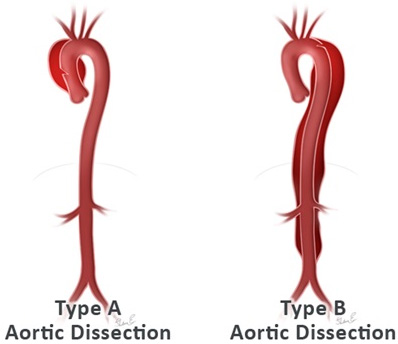 aorticdissectionrevised.jpg