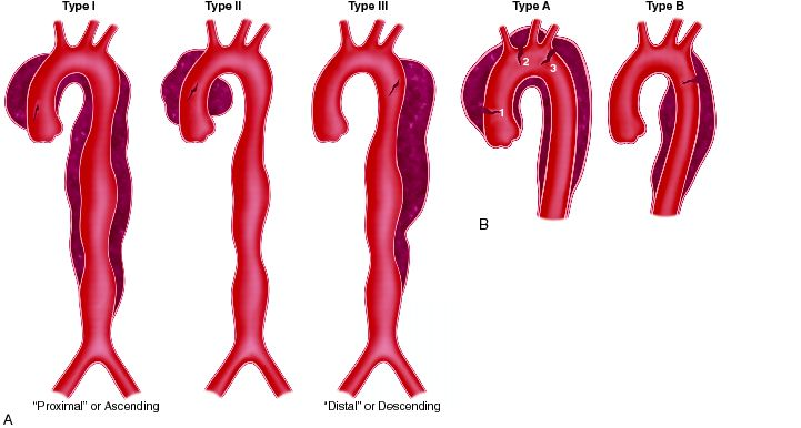 dissection-Thoracic-aneirysms.jpg